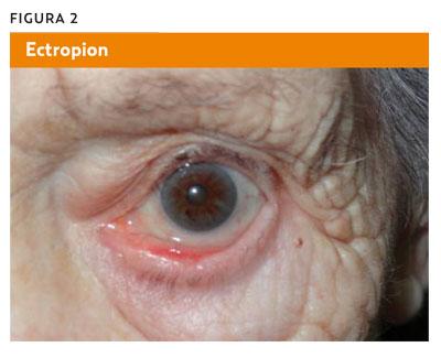 causas lagrimeo constante ojos